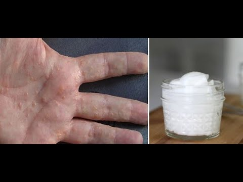 Two ingredient scrub for dry skin and dyshidrotic eczema