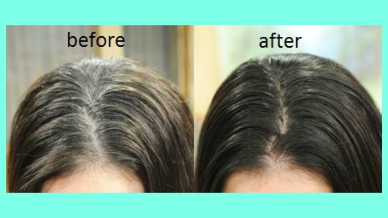 Weiße Dielen Spend Just 5 Mins & Say Goodbye To White Hair Once