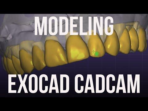 Live Exocad training Desing. Live wax up Секреты Стоматологии
