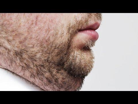 Double Chin: Solution Through Non-Invasive Procedure
