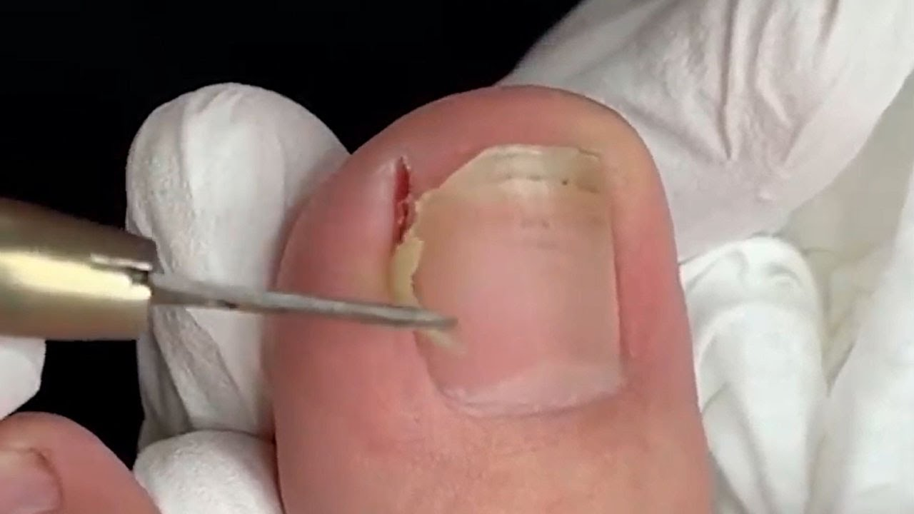 Trypophobia Feet And Jigger Removal Yikes Youtube