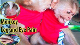 Monkey Baby Asher Sore Feet and Eyes, so pitiful Monkey Sam consoled