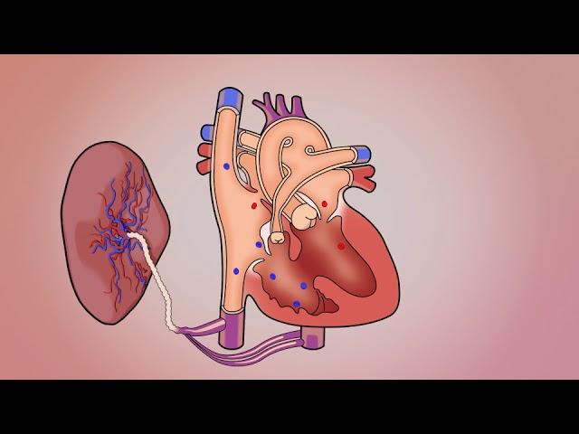 Tetralogy - Fetal w/Bloodflow