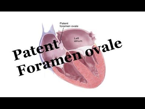 What's Patent Foramen Ovale (PFO): Pediatrics