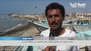 مجاعة وسوء تغذية وامراض في محافظة الحديدة في اليمن