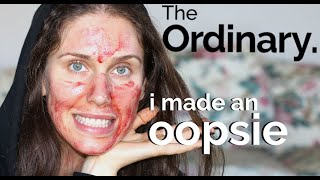 apology: The Ordinary - Chemical Acid Peels & Skincare - I Made A Mistake