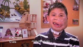 Maladies orphelines: sa malformation veineuse lui a déformé le visage.