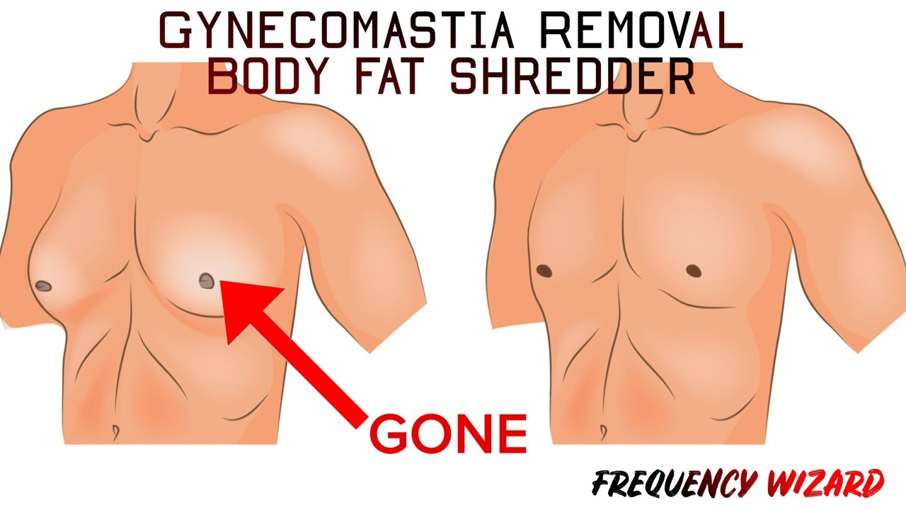 Gynecomastia Removal + Bodyfat Shredder (WORKS 100%)