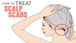 Scalp scabs   scalp scabs treatment   how to treat scalp scabs   scalp scabs and hair loss