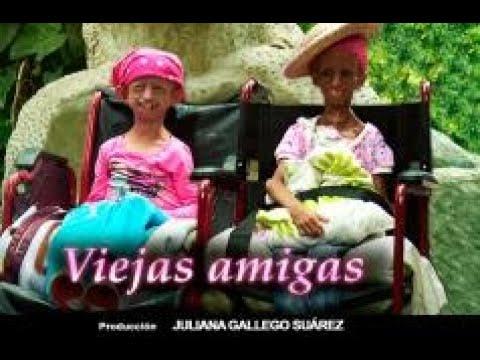 Viejas amigas: el emotivo encuentro de las nicas nias con progeria en el pas