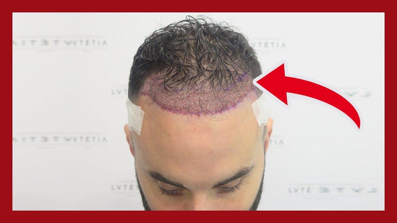 la greffe de cheveux est elle efficace