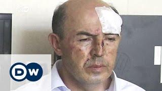 تركيا ـ ضحايا يتحدثون لـ DW عن حالات تعذيب وحشي في مراكز الشرطة