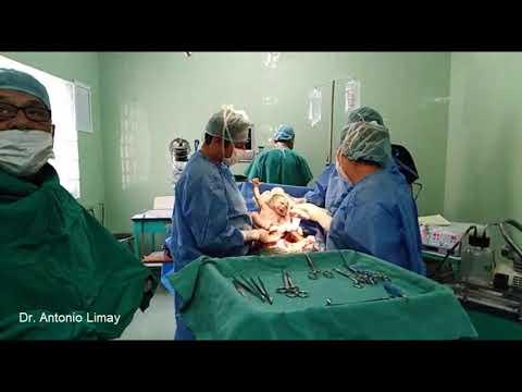 Atencion De Parto De Gemelos Por Cesarea En La Clinica Hogar De La