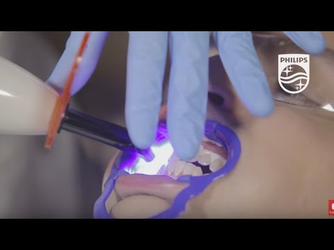 Demo of Zoom QuickPro professional in-office whitening varnish | Philips | Dental Professionals