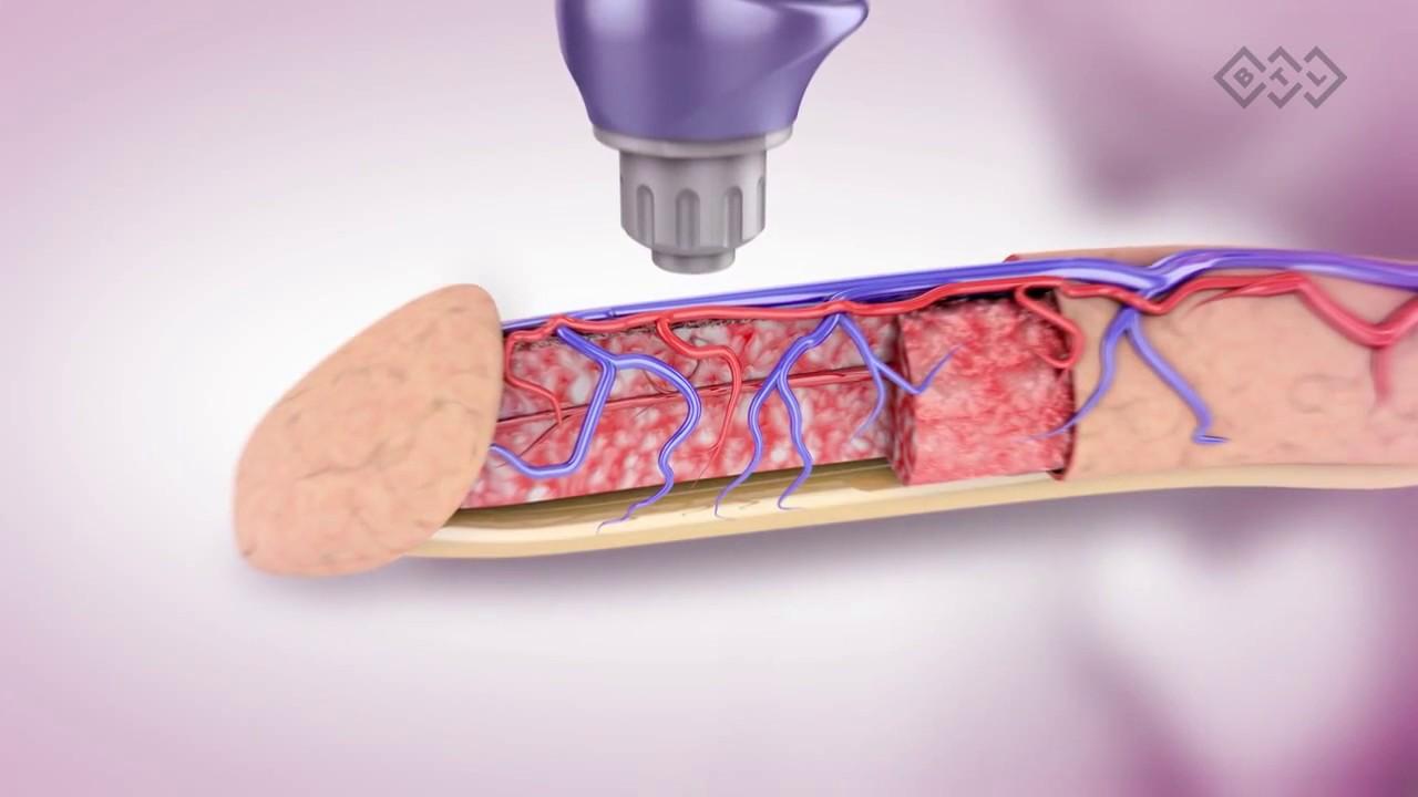лечение простатита увт отзывы