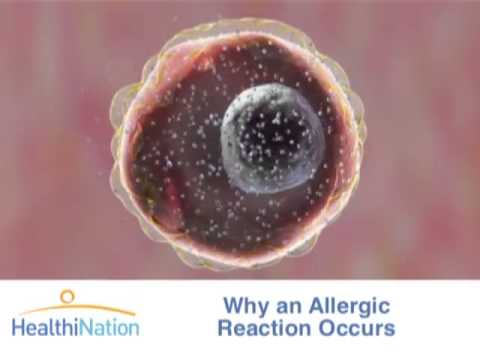 What are Allergies, Atarax allergy medications, Indications for use