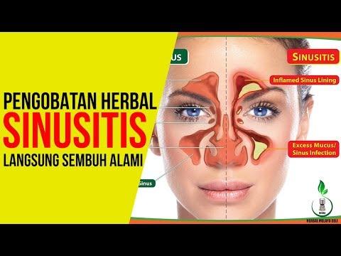 cara-mengobati-sinusitis-secara-alami---pengobatan-herbal-sinusitis-hingga-tuntas-tanpa-operasi