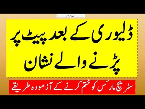 How to Remove Stretch Marks Easily at Home | Every Girl Should Know | پیٹ کے نشانات