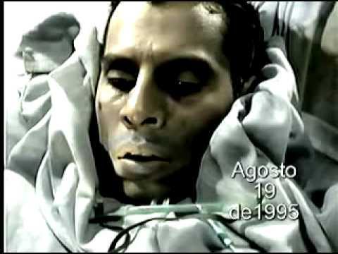 Videograbación de la Fase del SIDA   :