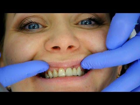 Как восстановить эмаль зубов — домашние и профессиональные
