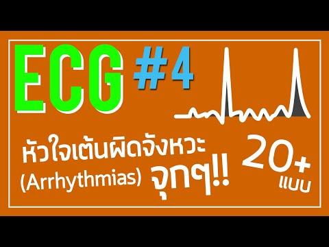 ECG #4: หัวใจเต้นผิดจังหวะ มีแบบไหนบ้าง จะเห็น EKG แบบไหน!!