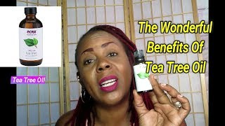 Healthy Living: The Wonderful Benefits Of Tea Tree Oil... My Must Have Oil, See Why