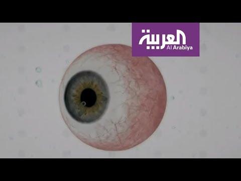 لبنان .. سبق طبي في علاج مرض يسبب العمى  - نشر قبل 10 ساعة