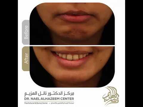 جراحة تقديم الفك السفلي دكتور نائل الهزيم Youtube
