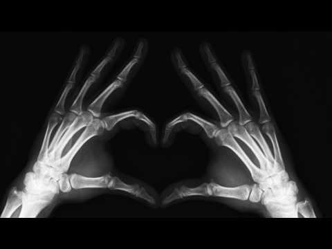 Как определить трещину в кости