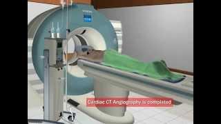 видео Компьютерная томография-коронарография