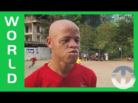 Tanzania's Albino United on Trans World Sport
