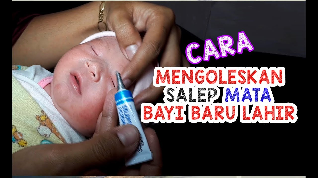 Cara Mengoleskan Salep Mata pada Bayi Baru Lahir yang ...