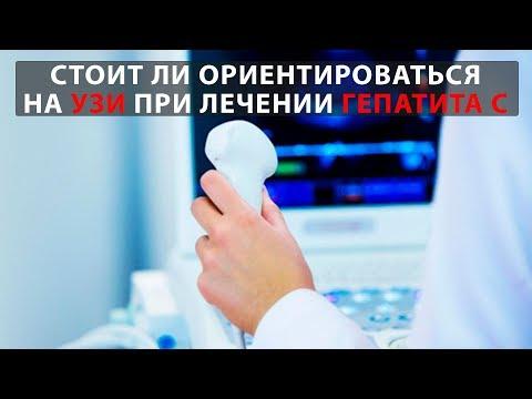 Почему не стоит ориентироваться на результаты УЗИ при лечении гепатита С?