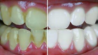 Teeth Whitening At Home In 2 Minutes - पाएं सफेद चमकदार दांत | PrettyPriyaTV