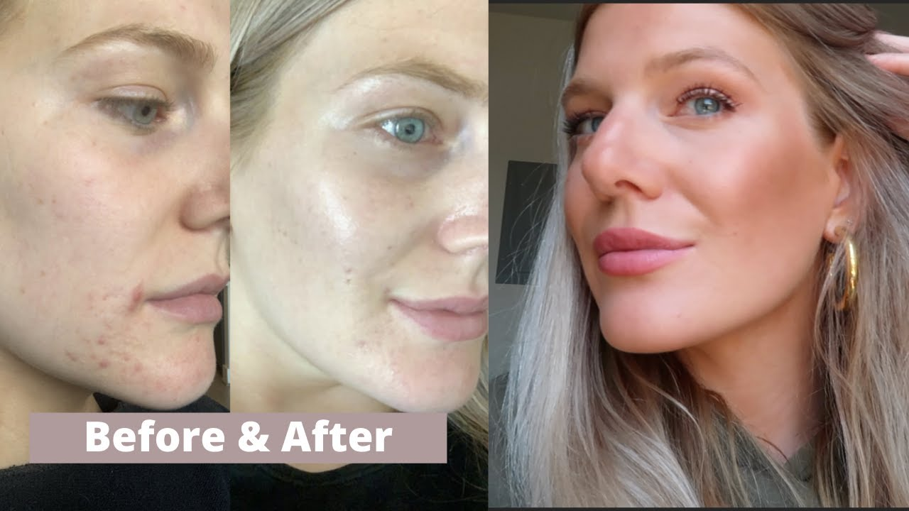 HOW I CLEARED MY ADULT ACNE (finally!!!)