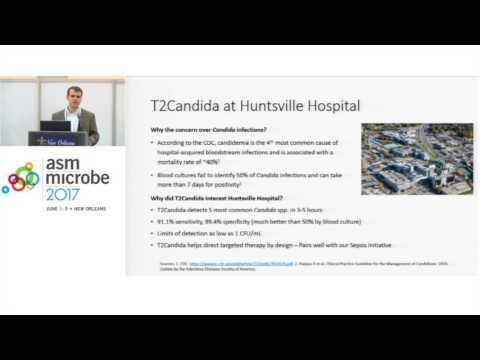 ASM Microbe 2017 -  Jonathan D. Edwards, PharmD: Why T2 at Huntsville
