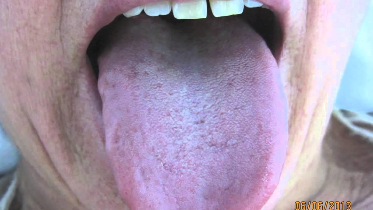 Herpes en la garganta sintomas