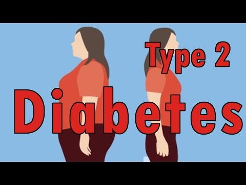 The Most Effective Treatment For Diabetes Type 2 | Herbal Treatment For Type 2 Diabetes