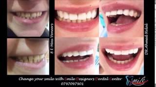 Smile Designers Dental Center Dr.Ahmed Helal 2017 Video