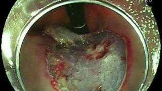 ESDによる早期胃がん摘出+ハリスクリップ縫合閉鎖法