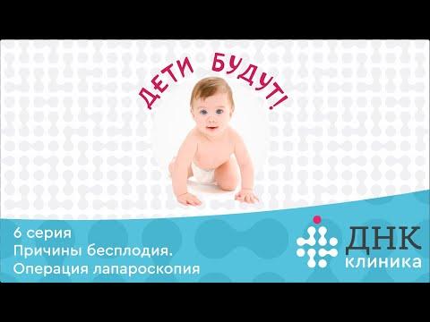 """6 серия проекта """"Дети будут!"""". Причина бесплодия. Лапароскопия в ДНК Клинике."""
