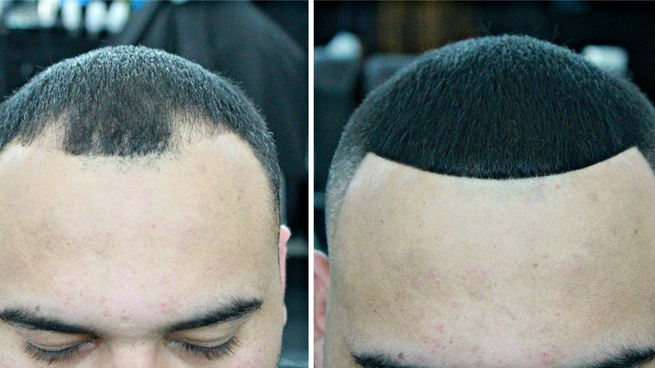 Top 3 Bald Spot Cover-Ups