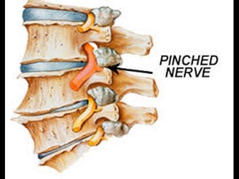 Quiropractico Waterford y los Nervios Pinchados en la Espalda y ...