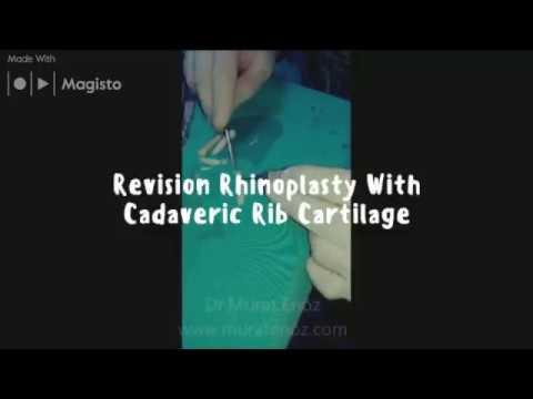 Revision Rhinoplasty With Cadaveric Rib Cartilage in İstanbul, Turkey