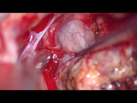 Acoustic Neuroma with Jacob Hunter, M.D..