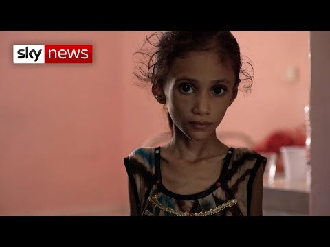 Special report: Yemen's children are starving