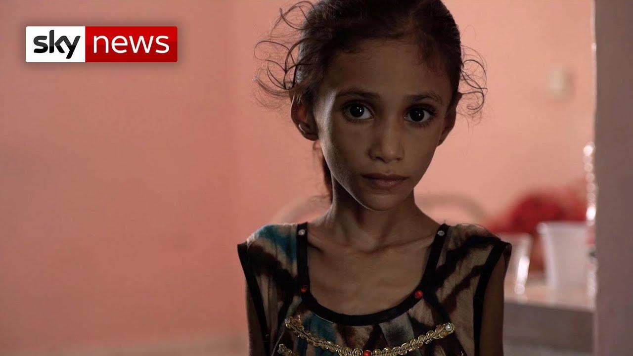 Special report: Yemen's children are starving