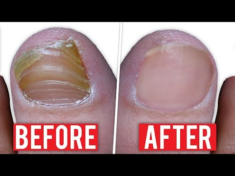 Fingernail fungus treatment – Best Natural Remedy For Fingernail Fungus