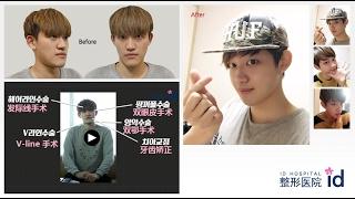 韩国网红 整形节目 复仇者联盟 Beagles Avengers-[逃离自卑记②]像EXO灿烈的男孩 被爆再現人形 検索動画 25