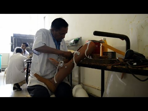 Low-cost prostheses giving Indian amputees a leg up